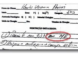 Médico disse que escreveu 'em me' e não 'sem me' conforme questiona o processo (Foto: Reprodução de documento)