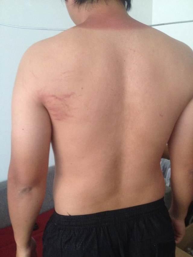 Chinês mostra marcas de agressão sofridas no Centro de Vitória (Foto: Divulgação)