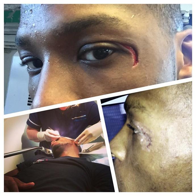 Corte no olho tira Michael Page de evento do Bellator