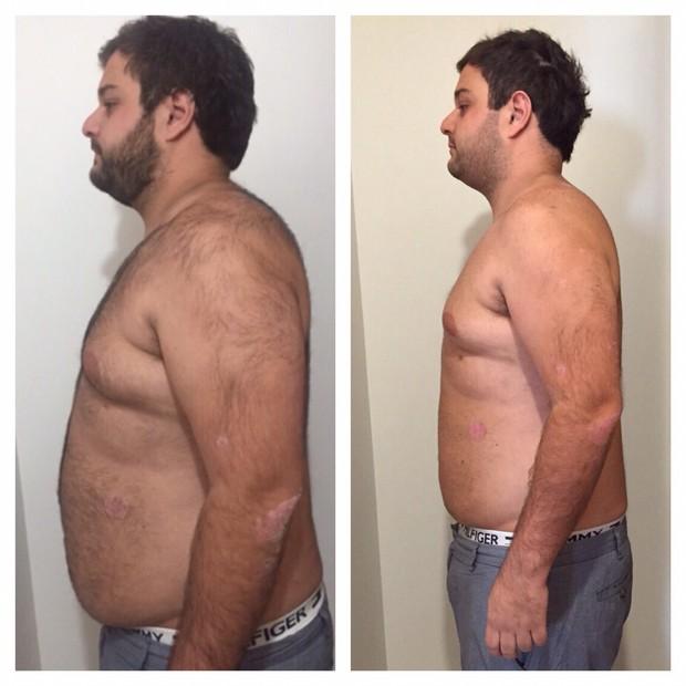 O antes e depois de participante do programa #mayracardisecavc (Foto: Divulgação)