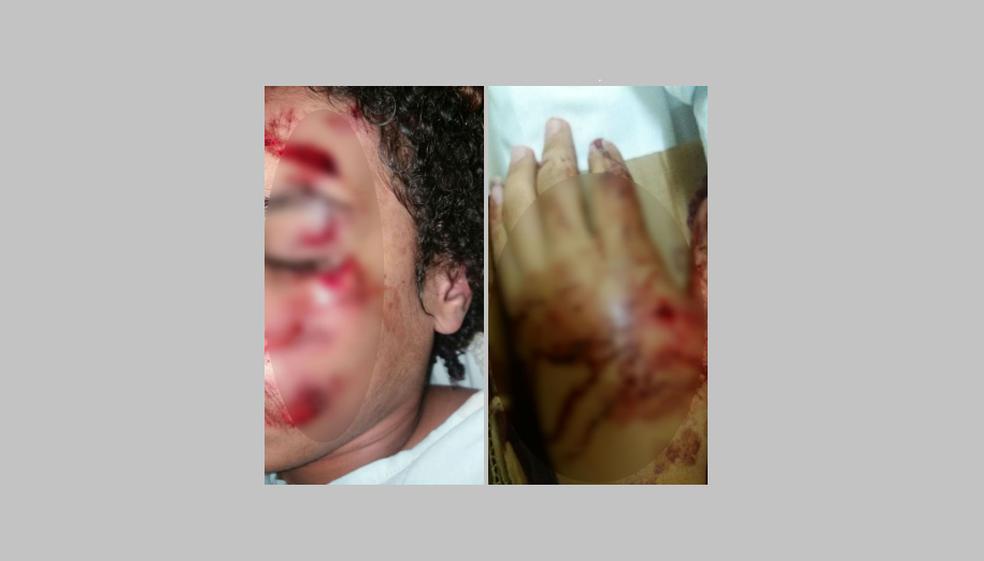 Adolescente de 15 anos teve ferimentos na cabeça e na mão (Foto: Rosana Lopes/Arquivo Pessoal)
