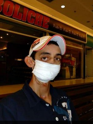 Muitas vezes, Oziel usa máscara para sair às ruas. (Foto: Arquivo pessoal)