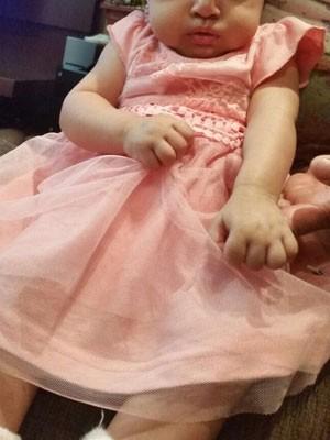 A bebê que teria perdido movimento do braço após violência obstétrica no DF (Foto: Jane Rodrigues/Arquivo Pessoal)