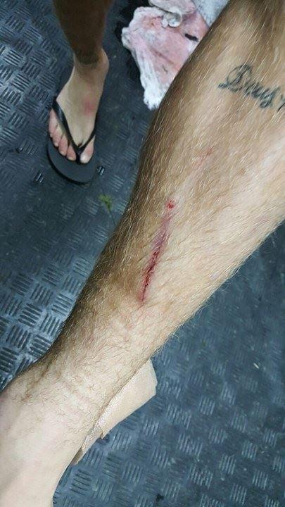 BLOG: Lucas Lima mostra marcas na perna após empate do Santos em La Paz