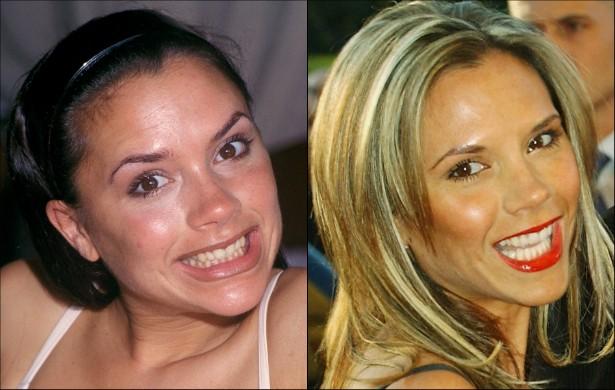 Sim, a sisuda ex-Spice Girl Victoria Beckham sorri de vez em quando. Talvez, quando ela começou a fazer sucesso, nos anos 90, a postura séria fosse uma forma de esconder um sorriso meio esquisito. Mas, pelo menos desde 2004, ela não tem desculpa: fica linda também dando risada. (Foto: Getty Images)