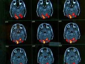 Programa analisa cérebros e dá diagnóstico com 80% de acerto (Foto: Paulo Chiari/EPTV)