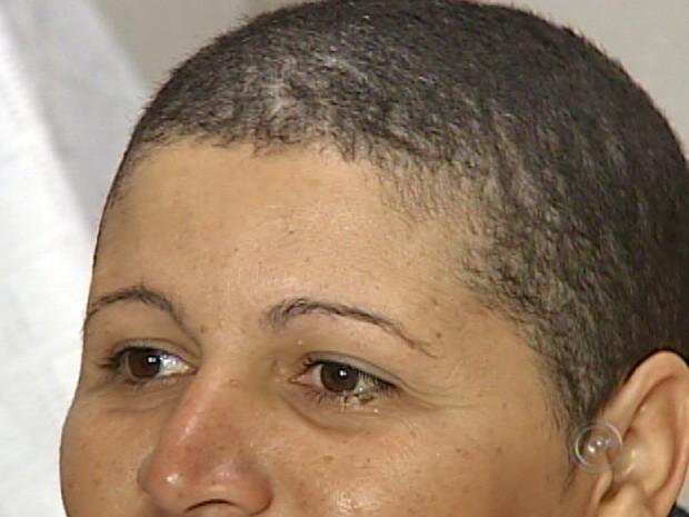 Mulher fica careca após usar produto para alisar cabelo em Sorocaba, SP (Foto: Reprodução TV Tem)