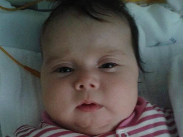 Sofia sofre com uma doença rara: a síndrome de Berdon (Foto: Divulgação / Campanha 'Ajude a Sofia')