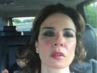 Luciana Gimenez aparece com o rosto vermelho: 'Queimei a cara'