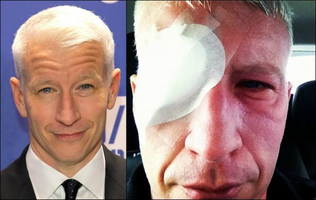 É perigoso olhar diretamente para o Sol, mas o que Anderson Cooper não sabia é que mirar a água refletindo a luz solar também pode fazer mal. O jornalista da CNN acabou queimando a retina dos dois olhos em Portugal e ficou cego por três dias. (Foto: Getty Images e Instagram)