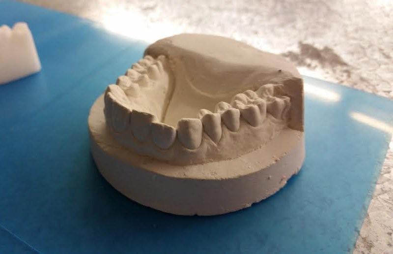Aparelho caseiro feito com impressora 3D (Foto: Amos Dudley/Business Insider)