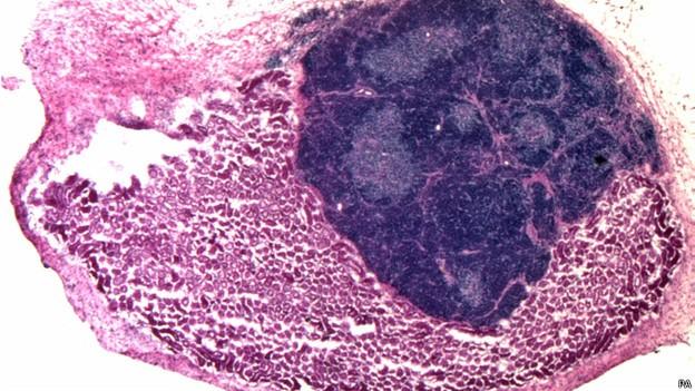 Timo - órgão ligado ao sistema imunológico - foi criado artificialmente dentro de um camundongo (Foto: BBC)
