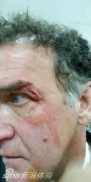 Cuca corte após briga (Foto: reprodução/vídeo)