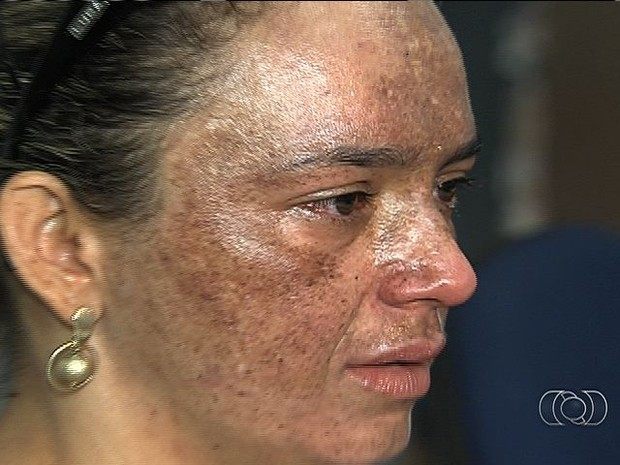 Mulher tem rosto queimado em tratamento e denuncia erro médico (Foto: Reprodução/ TV Anhanguera)