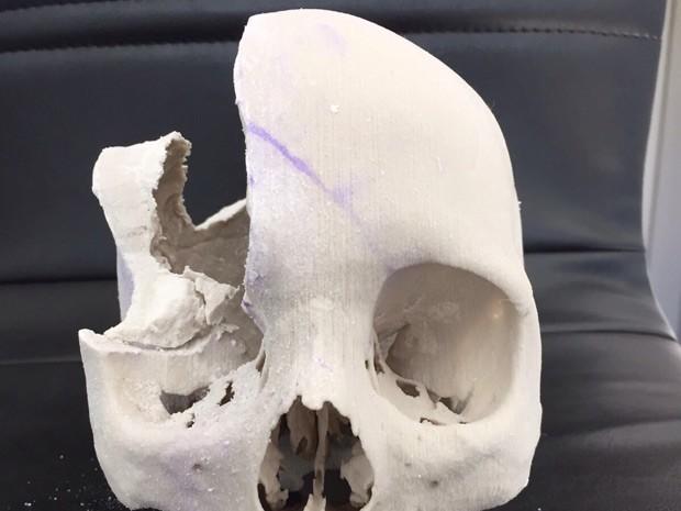 Molde mostra parte do crânio de Santana Rodrigues, de Brasília, afetada por tumor que deixa osso poroso (Foto: Hospital Santa Luzia/Divulgação)