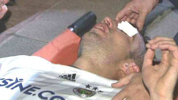 BLOG: Van Persie sofre séria lesão no olho em vitória do Fenerbahçe; assista