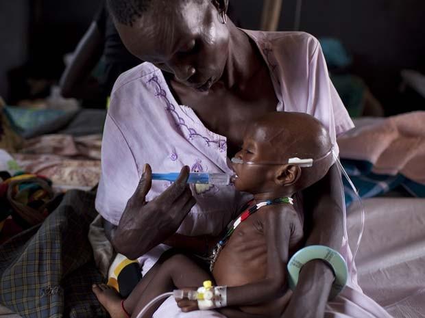 Foto de 3 de março de 2014 mostra criança desnutrida sendo atendida em um acampamento médico da organização Médicos sem Fronteiras em Minkamman, no Sudão do Sul, onde cerca de 50 mil pessoas foram vacinadas contra a cólera (Foto: AFP PHOTO / JM LOPEZ)