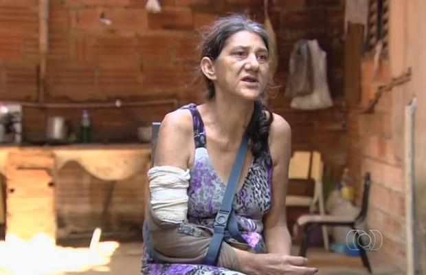 Mulher com braço quebrado não consegue andar por causa das dores (Foto: Reprodução/TV Anhanguera)