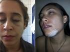 Estudante agredida em república de Ouro Preto se diz 'revoltada'