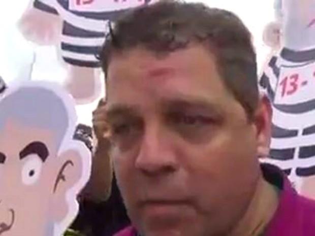 Deputado diz que foi agredido por militantes durante manifestação em visita de Lula no Acre (Foto: Reprodução/Facebook)