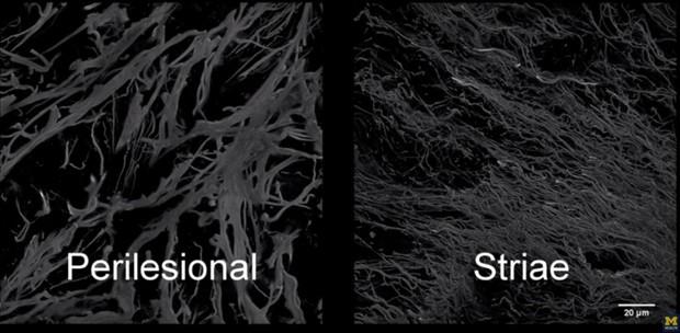Imagem mostra pele nomal (esq.) e pele com estria (dir.): nas estrias, fibras elásticas são danificadas e cremes disponíveis atualmente não têm como repará-las.  (Foto: U-M Health System/Divulgação)