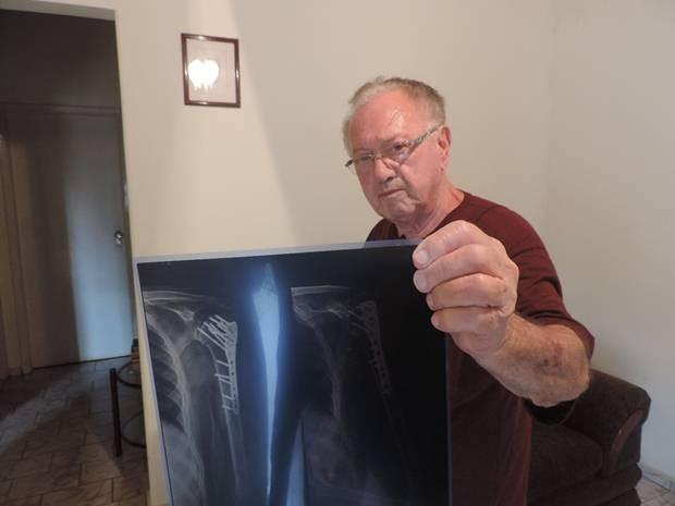 Nelson Lázaro mostra o raio-x com a placa que teve de colocar (Foto: Marcos Lavezo/G1)