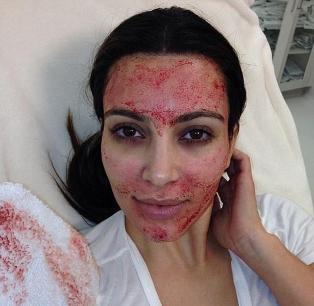 [BELEZA] Galeria Posts Bizarros - Kim Kardashian (Foto: Instagram / Reprodução)