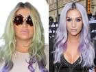 Kesha surpreende por lábios volumosos nos Estados Unidos