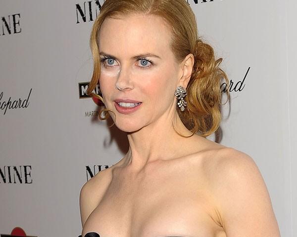 Nicole Kidman mais de uma vez foi vítima do pó translpucido em eventos de red carpet (Foto: Getty Images)