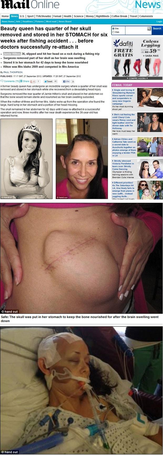 Montagem mostra imagens da americana Jamie Hilton: acima, à esquerda, como Mrs Idaho 2009, e à direita após a retirada do pedaço do crânio. No detalhe ao centro, o osso armazenado dentro do abdômen, e abaixo, após a cirurgia de recolocação (Foto: Reprodução/Daily Mail)