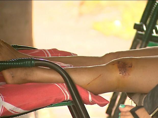 A cunhada de Keila sofreu ferimentos nas pernas após o atropelamento (Foto: Reprodução/EPTV)