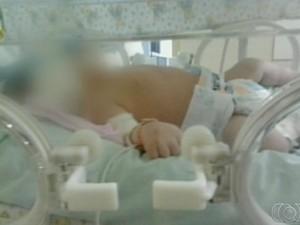 Menina, de apenas cinco dias, tinha grave problema no coração (Foto: Reprodução/Tv Anhanguera)