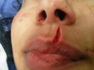 A menina foi atendida no Hospital Ferreira Machado. (Foto: Silvana Rust/ Terceira Via)