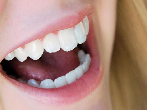 Bem Estar Por Que Os Dentes Amarelam E Como Evitar Isso