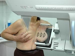 Parlamento Europeu quer expansão de mamografias para prevenir câncer de mama (Foto: Femama/Divulgação)