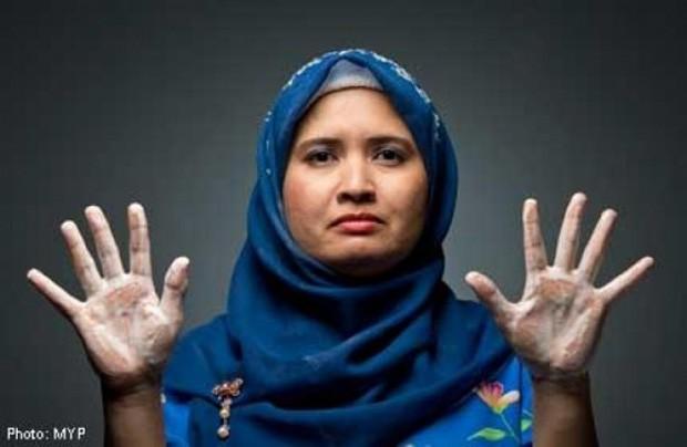Julia Abdullah mostra como ficaram suas mãos por causa de seus rituais obsessivos de limpeza (Foto: Reprodução/IMS)