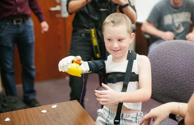 Grupo de estudantes cria braços biônicos para crianças usando impressora 3D