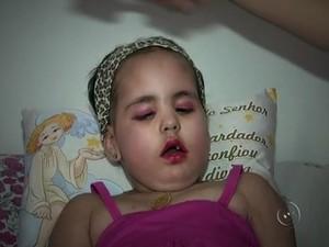 Gaby tem seis anos e luta contra um tumor no cérebro (Foto: Reprodução/TV TEM)