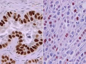 Células cancerosas (Foto: Geovanni Cassali/UFMG)
