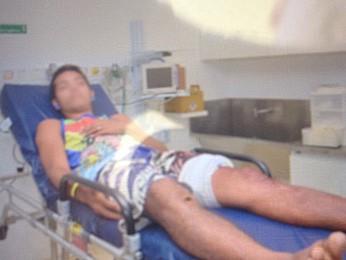 Jovem está internado no Hospital Miguel Arraes, no Recife (Foto: Divulgação / Corpo de Bombeiros)