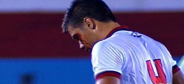 Diego Giaretta zagueiro Atlético-GO (Foto: Reprodução/TV Anhanguera)