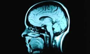 Estimular cérebro com eletricidade acelera aprendizado, diz estudo (Foto:  Corbis Royalty Free)