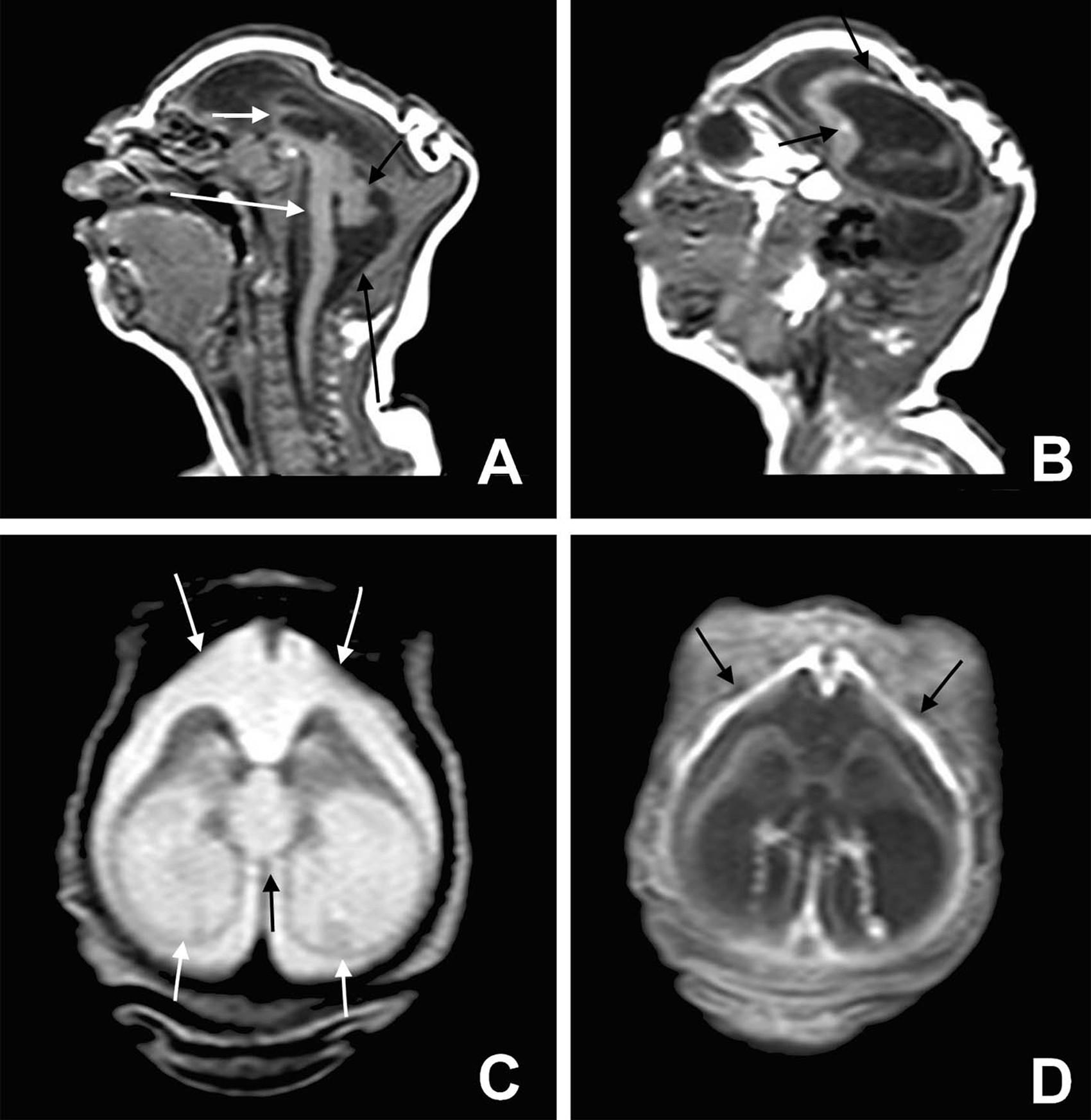 Exame de imagem revela danos cerebrais de bebês com microcefalia (Foto:  BMJ 2015/ http://www.bmj.com/cgi/doi/10.1136/bmj.i1901 )