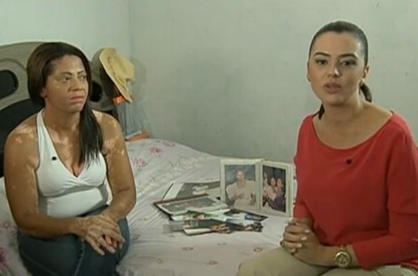 Danielle Borba entrevista paciente sobre a rotina de cuidados com o vitiligo (Foto: Reprodução/TV Globo)