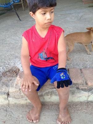 Victor Soares sofre de polidactilia e tem 26 dedos, em Abadia de Goiás (Foto: Humberta Carvalho/G1)