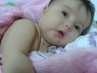 Bebê com síndrome rara pode viajar aos EUA para fazer cirurgia