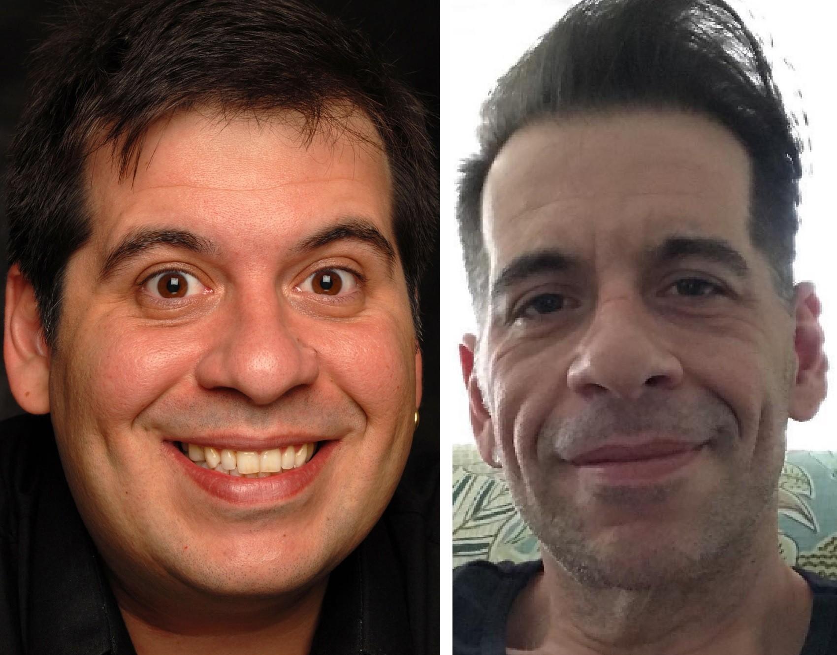 Leandro Hassum, antes e depois da cirurgia