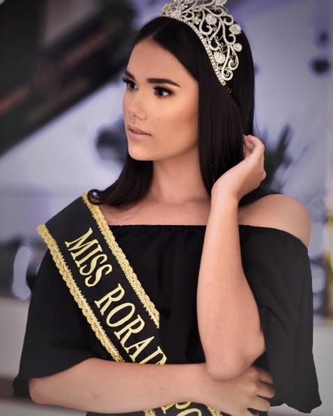 Miss em Roraima passa mal e morre os 21 anos durante cirurgia de emergência em hospital