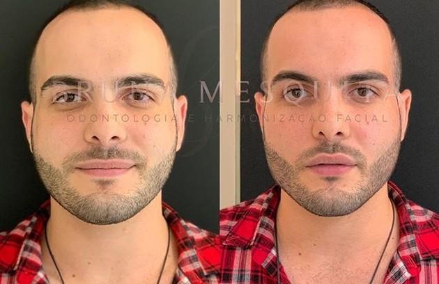 Mahmoud, do 'BBB' 18, também fez harmonização facial (Foto: Reprodução)
