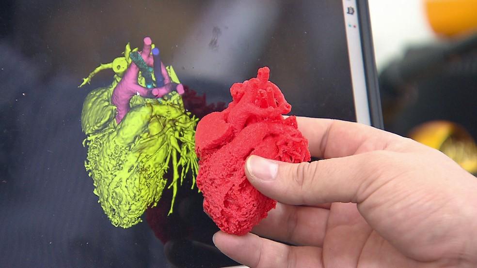 Corações são impressos em 3D, no Recife, para ajudar em cirurgias — Foto: Reprodução/TV Globo